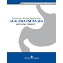 Acalasia esofagea